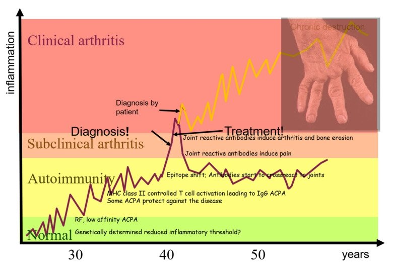 Course of disease for clinical arthritis