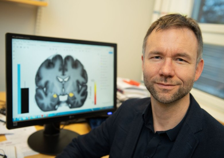 Andreas Olsson in fron av creen with an image of a brain.