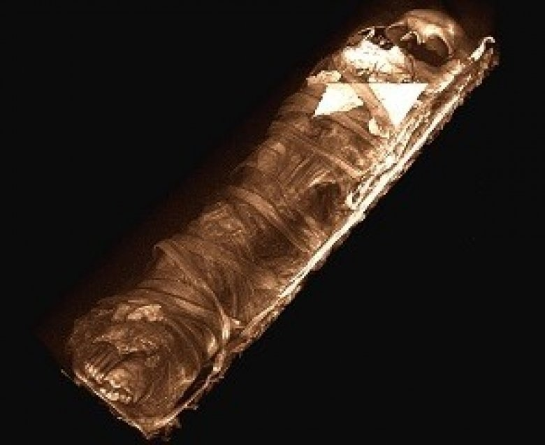 3D scan image of a mummy.