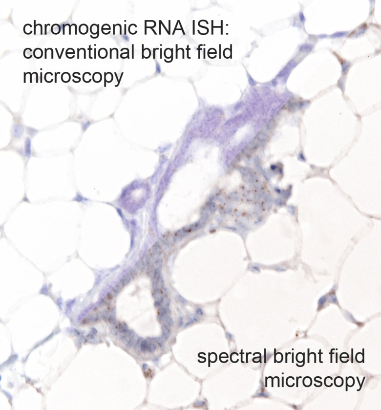 Scientific image: The image is a combined image of normal bright field microscopy (upper left) with spectral brieght field microscopy using the Vectra 3 system (Akoya Biosciences)