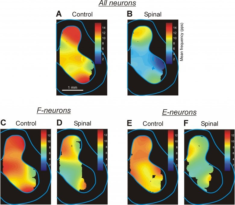 Effect of spinalization on population activity of spinal neurons.
